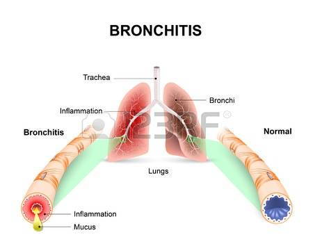 Allergic Bronchitis