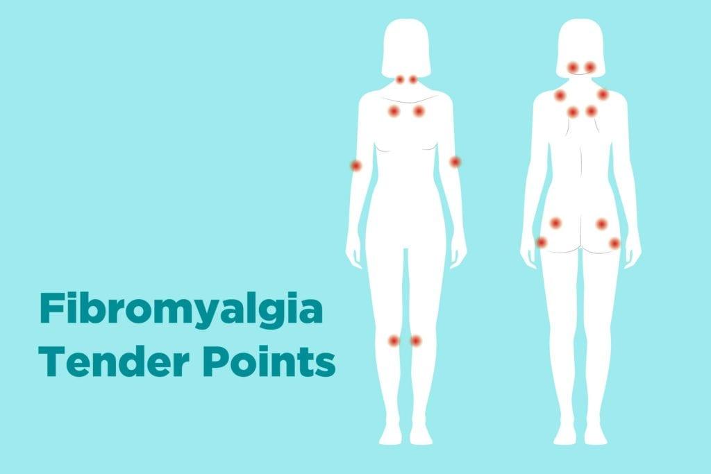 Fibromyalgia Ayurvedic Treatment